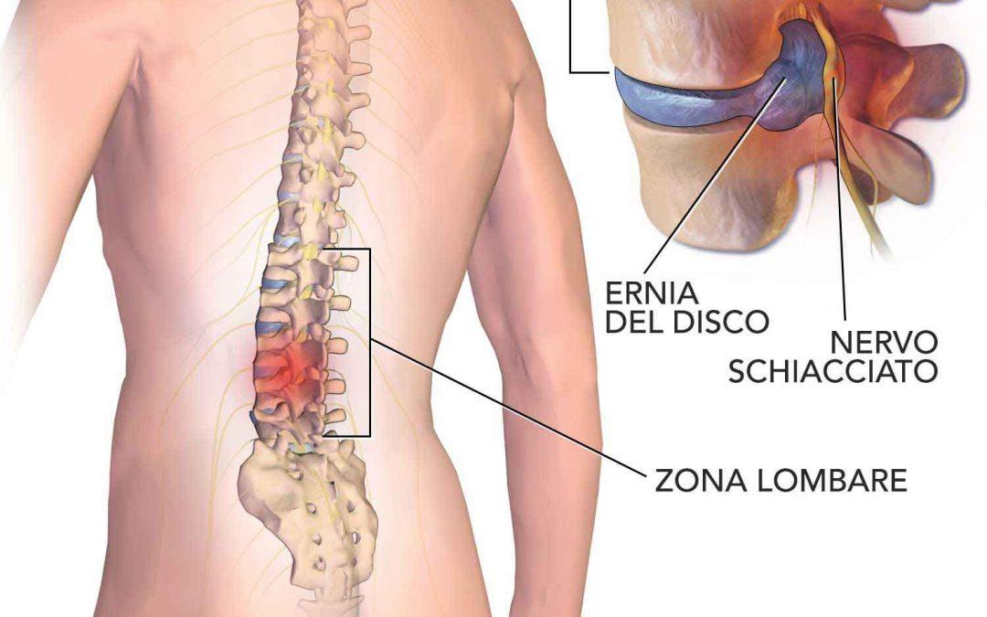 Scoliosis a forma di arco di reparto di petto di una spina dorsale di 1 grado