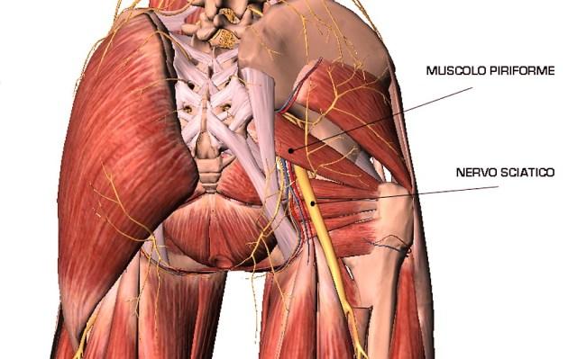 Compressione del nervo sciatico, quali sono le cause ?