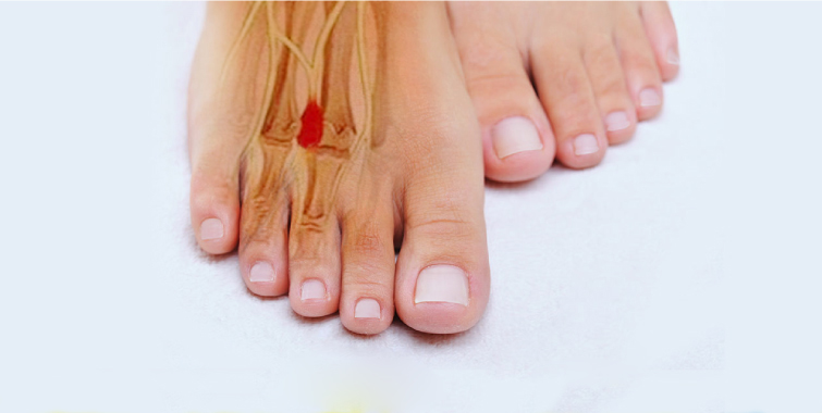 Risultati immagini per neuroma di morton al piede