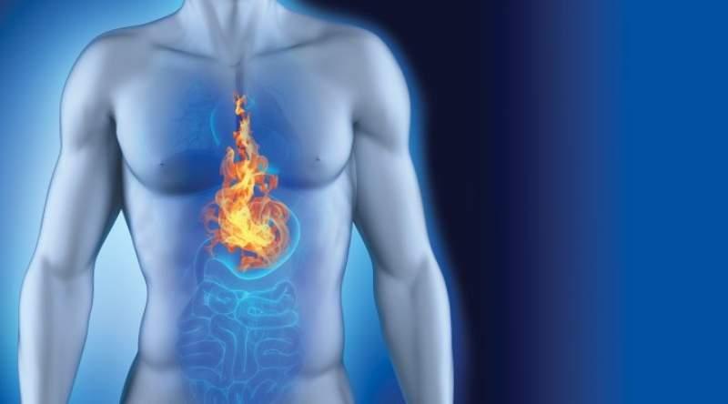 Reflusso gastroesofageo e test kinesiologici